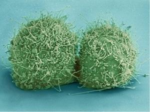 munddusche bakterien